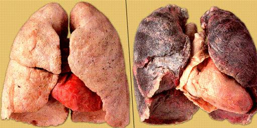 Далее про вред курения в картинках