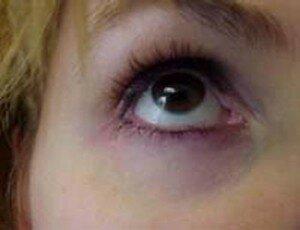 Синяки под глазами - как от них избавиться?