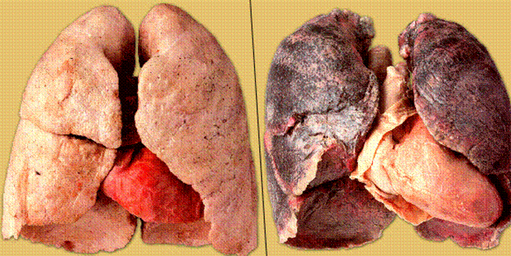 Курение и вред курения