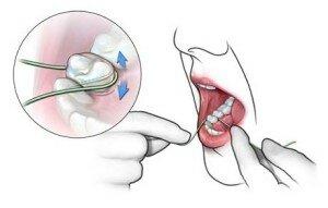 как пользоваться зубной нитью фото