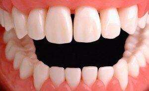Сколько у человека зубов?